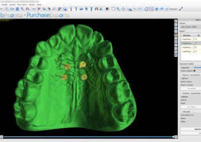 02 - Tecnort Ortodonzia - Laboratorio Ortodontico dal 1990 in Puglia